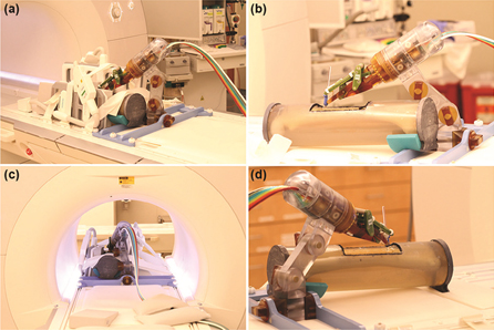 a) Robot mounted on table with long bone phantom in middle and imaging coils on both sides. (b) Coils removed to show phantom, robot, and long thin fiducial in needle guide (cutout in phantom. (c) Robot in scanner isocenter. Robot can be actuated to align needle guide while at isocenter. (d) View from right side illustrating robot mount and simulated positioning between legs.