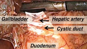 Real-time ultrasound data overlaid on live laparoscopic video during a laparoscopic cholecystectomy case (gall bladder removal).